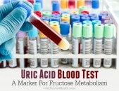 Uric Acid Blood Test – A Marker For Fructose Metabolism