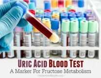 Uric Acid Blood Test - A Marker For Fructose Metabolism // OnDietAndHealth.com