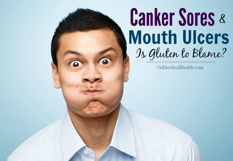 Could gluten be responsible for your canker sores and mouth ulcers?