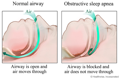 Restricted Airway