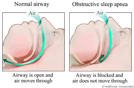 Restricted Airway