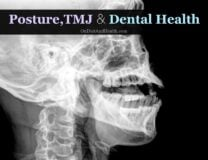 Posture, TMJ and Dental Health // OnDietAndHealth.com