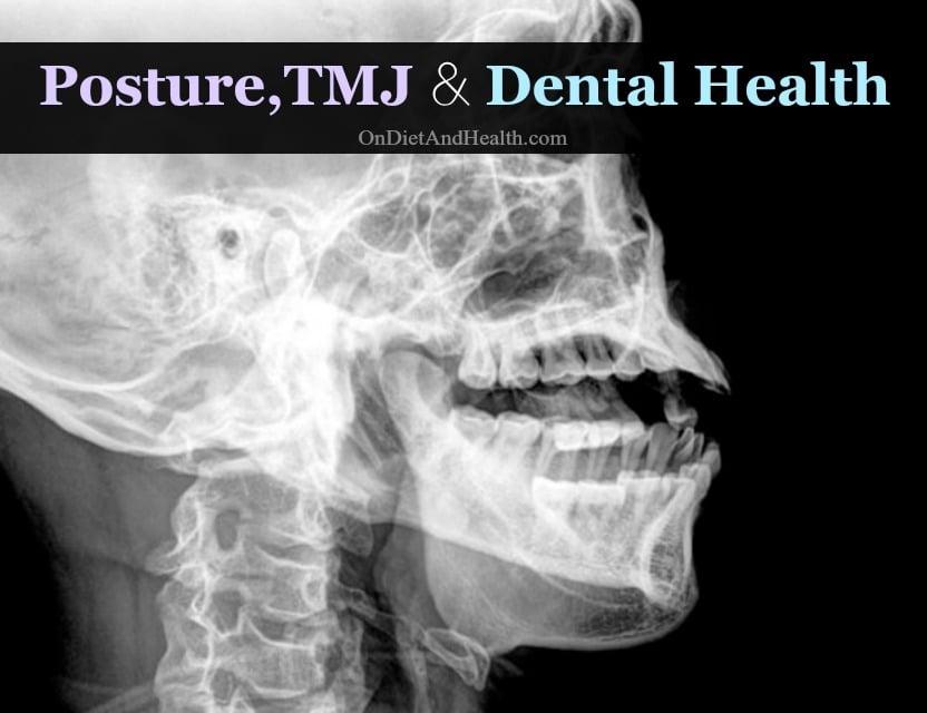 Posture, TMJ and Dental Health // OnDietAndHealth.com