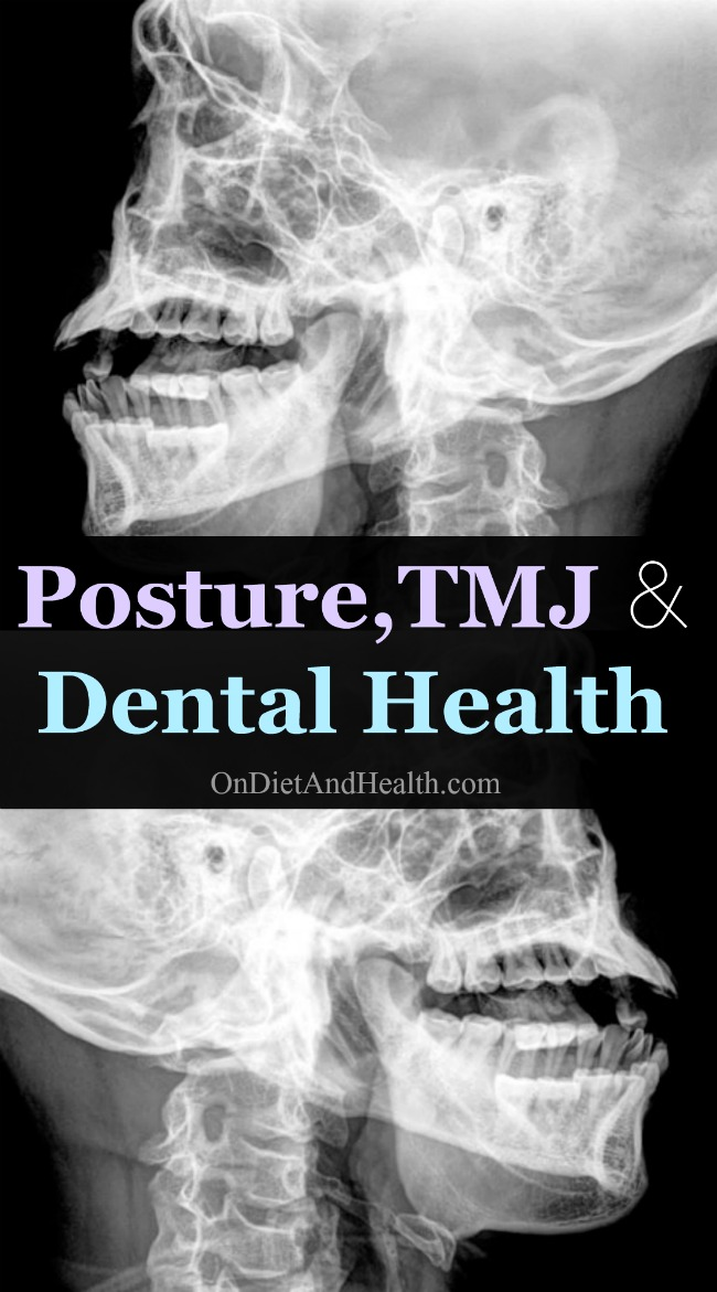 Did you know that your bite and TMJ joint affect your posture? And that posture affects your TMJ and dental health? What?! Your posture affects your health? A chain reaction occurs through the body from the teeth to the feet as our ever-wise bodies twist or splay to compensate for improper dental alignment. Follow me closely here. This is a lengthy but worthy post! // OnDietandHealth.com