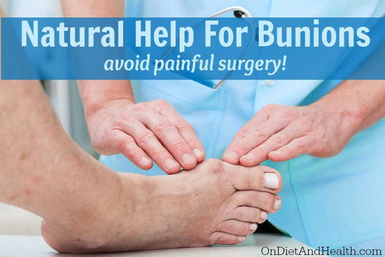Help for bunions without surgery - ondietandhealth.com
