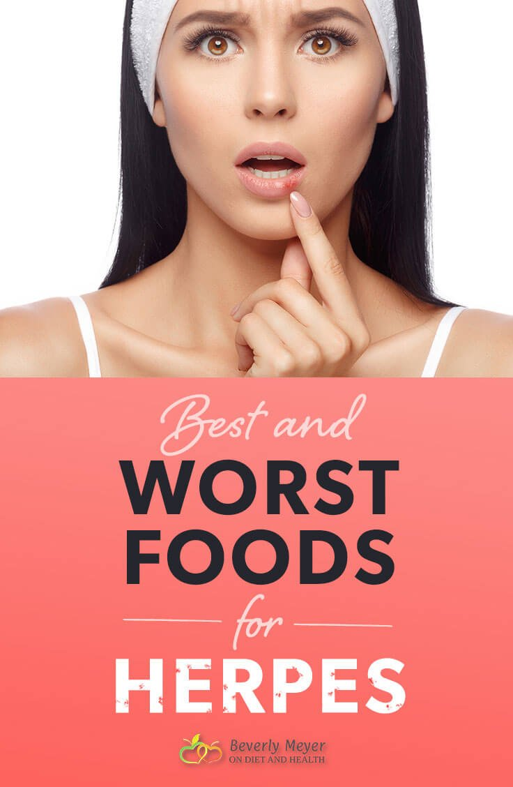 Knowing the best and worst foods for Herpes or Shingles can change your life. Herpes trigger foods include common foods you may eat every day, whether you are Paleo, Vegan, or Standard American food. Read the list of foods and check the Arginine to Lysine ratio of foods to see what foods to reduce, eliminate or increase. Like all nuts or seeds, grains are high in Arginine. What about Gelatin, coconut and chocolate for Herpes trigger foods? //OnDietandHealth.com